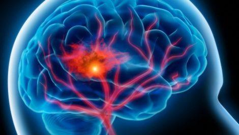 El coronavirus puede dejar una ola de lesiones cerebrales a gran escala