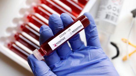PCR Venezuela