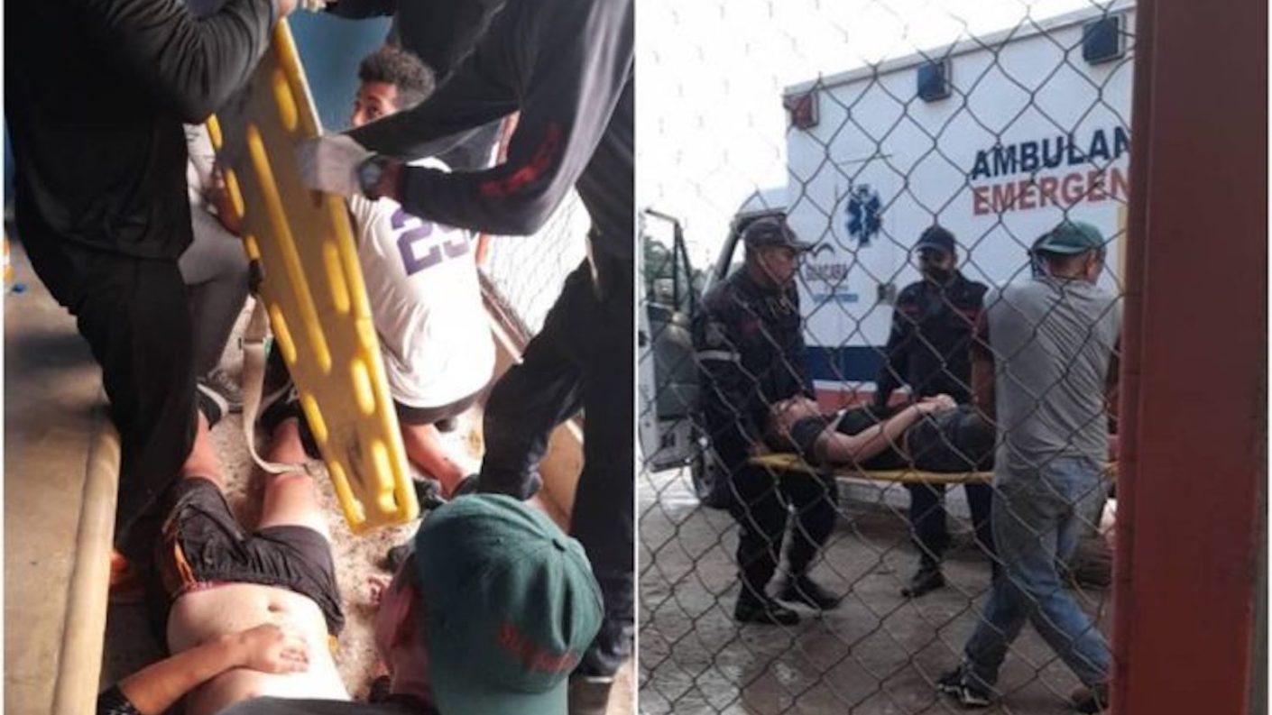 Dos adolescentes heridos por el impacto de un rayo en Guacara